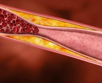 Cieva s nahromadeným cholesterolom